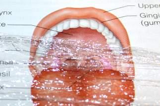 STD Awareness: Can I Use Plastic Wrap as a Dental Dam